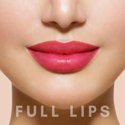 PrivaMedis Lip augmentation by Dr. Gary Merlino