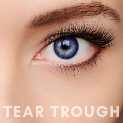 PrivaMedis Tear Trough